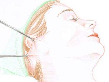 Ansigtsløftning