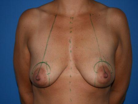 Brystreduktion og brystløft